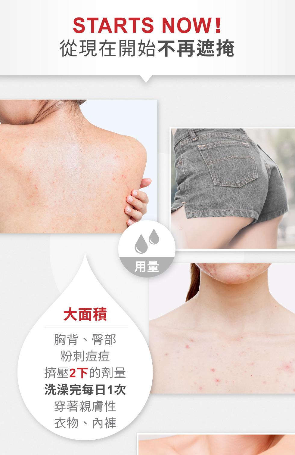 水楊酸美體煥膚乳 大面積用量
